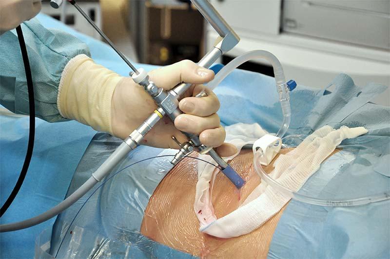 Perkütan cerrahi operasyonu - Prof. Dr. Sinan Zeren